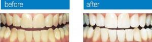 teethwhiteningimage