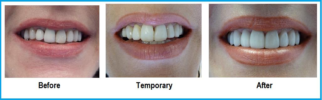 Cosmetic Dentistry   Bardon Smiles